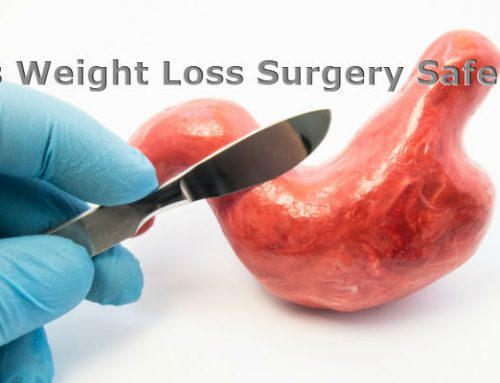 Is Weight Loss Surgery Safe?