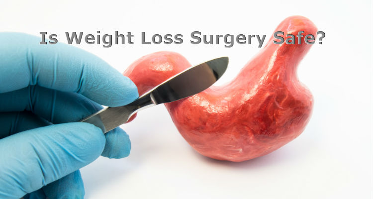 Is Weight Loss Surgery Safe