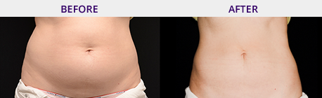 Before and After Pictures Coolsculpting
